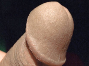 Mon gland |Ma queue branlée | Détails de mon sexe |Autoportrait |Ma bite, mon amie © David Noir