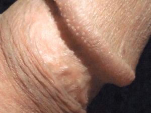 Mon gland (détail) |Ma queue branlée | Détails de mon sexe |Autoportrait |Ma bite, mon amie © David Noir